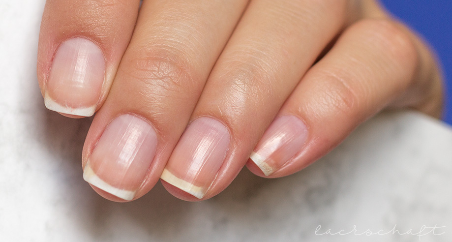 ANNY-liquid-nails-vorher-links-2